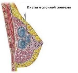 Фиброзно костная мастопатия это заболевание молочных желез