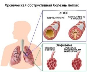 Лечение ХОБЛ народными средствами