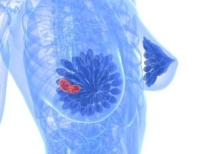 Лечение фиброзно-кистозной мастопатии народными средствами