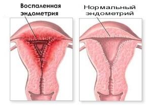 Нормальный эндометрий и воспаленная матка