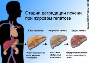 Стадии деградации печенипри жировом гепатозе