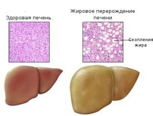 Здоровая печень и печень подвергнутая жировому перерождению