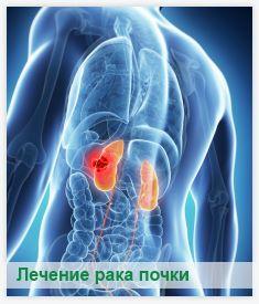 Лечение рака почек  народными средствами