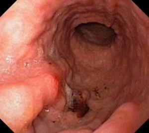 Лечение рака желудка 4 стадии