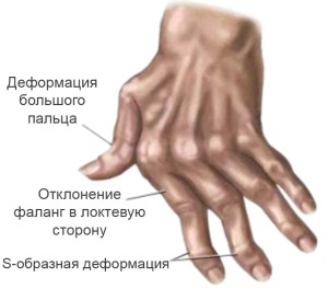 Пример деформации кисти при артрите