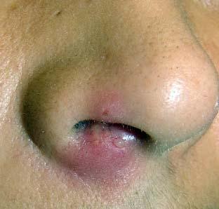 Фурункулез на лице