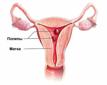 Лечение полипов матки народными средствами