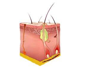 На ранних этапах фурункул выглядит, как небольшой красноватый узелок на поверхности кожи