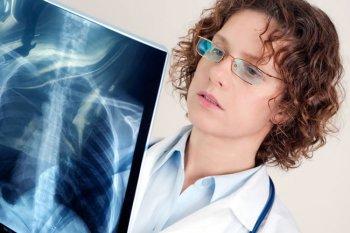 Ренген легких у пациента