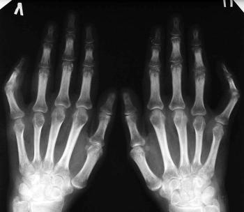 Ренген подтверждающий артрит кистей рук у больного