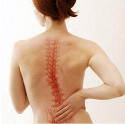 Симптомы сколиоза и его лечение