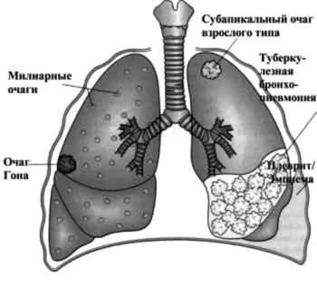 Туберкулез легких – лечение народными средствами