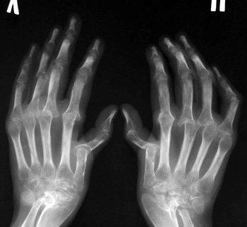 Вторая стадия артрита - ренгеновский снимок