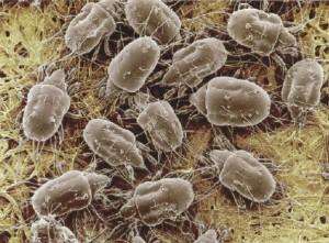 Заболевание чесотка под микроскопом
