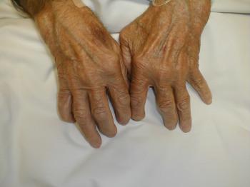 Артрит кистей рук лечение