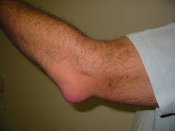 Эпикондилит – это серьезное заболевание локтевого сустава
