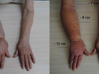 Лечение лимфостаза рук народными средствами