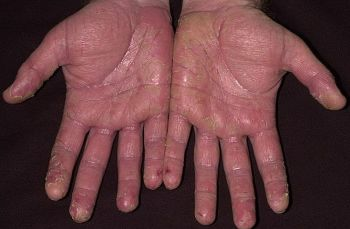 Лечение сухой экземы на руках