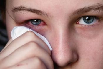 Воспаление глаз, лечение народными средствами