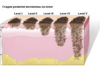 Лечение рака кожи народными средствами