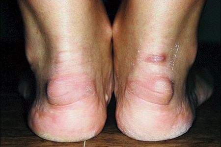 воспаление связок пятки лечение народными средствами
