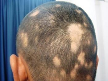 Лечение болезней волос народными средствами