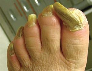 Атрофическая форма недуга сопровождается затемнением ногтевой пластины и дальнейшим ее отмиранием