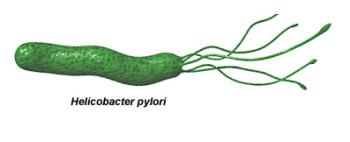 Атрофический гастрит может быть вызванной инфекцией, главной причиной которой является вредоносная бактерия - helicobacter pylori