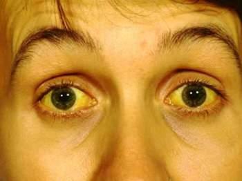 Билирубин повышен. Лечение народными средствами