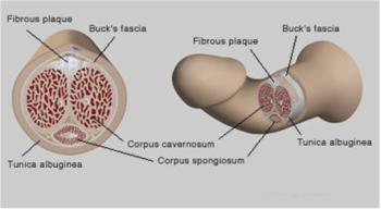 Болезнь Пейрони. Лечение болезни Пейрони