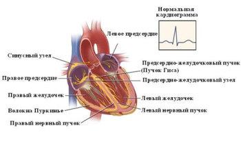 Брадикардия (пониженная частота сердечных сокращений)