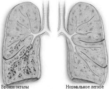 Кашель зачастую сопровождается выделением мокроты с гноем. Вскоре это приводит к деформации бронхов, в полости которых появляются бронхоэктазы – небольшие мешотчатые опухоли