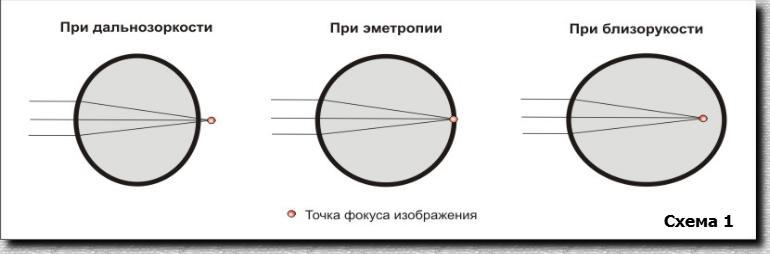 Как восстановить зрение каплями
