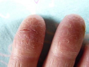 Такие кожные дефекты доставляют массу неудобств, ведь любое прикосновение становится чувствительным