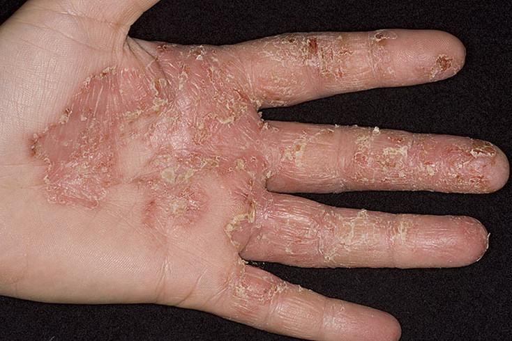 Чем отличается лишай от атопического дерматита
