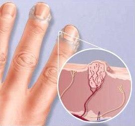 Лечение шипицы на руках
