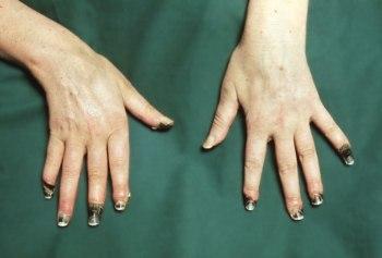 Если не лечить болезнь, то вскоре онемение перерастет в некроз тканей и полную потерю пальцев