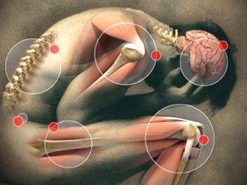 Фибромиалгия лечение