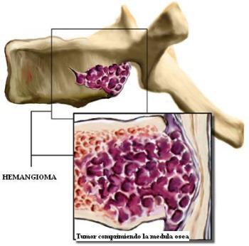 Лечение гемангиомы позвоночника народными средствами