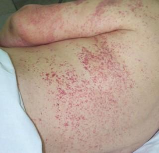 Лечение геморрагического васкулита народными средствами