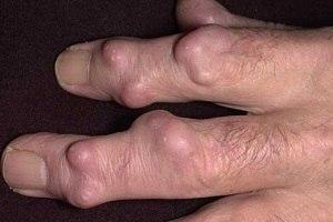 Лечение гигромы пальцев руки народными средствами