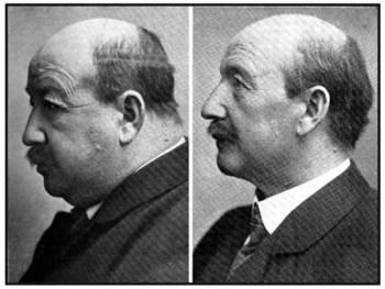 Гипотиреоз фото до и после лечения