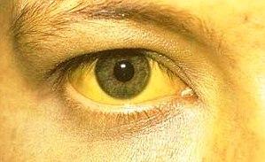 Лечение синдрома жильбера народными средствамиЛечение синдрома жильбера народными средствами