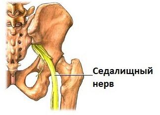 Ишиас – это распространенное заболевание седалищного нерва