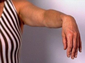Как лечить лучевой нерв руки
