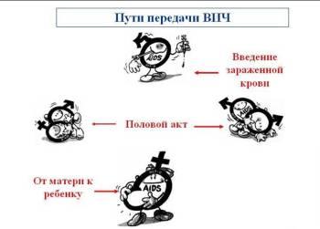 Как передается ВИЧ