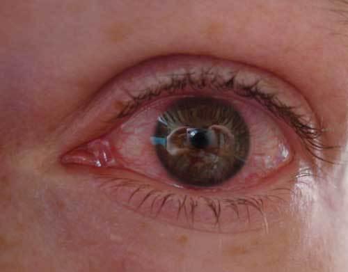 аллергия на химию на руках фото