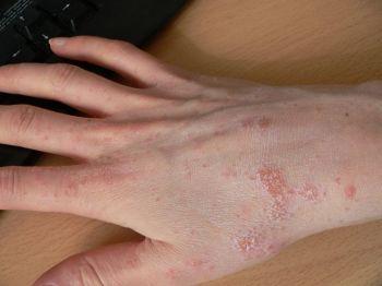 Лечение дерматита на руках