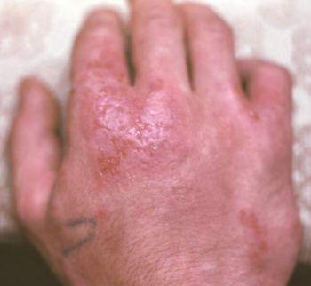 Лечение дерматита на руках народными средствами