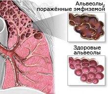 Лечение эмфиземы народными средствами